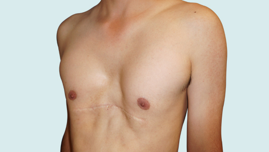 Risk of residual Pectus Excavatum after Ravitch surgery