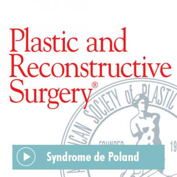 Article du Plastic and Reconstructive Surgery Journal sur le Syndrome de Poland