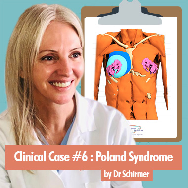 Clinical Case 6 by Dr Schirmer on Poland Syndrome